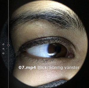 Verrtigocatcher_Dizzycenter_Stockholm