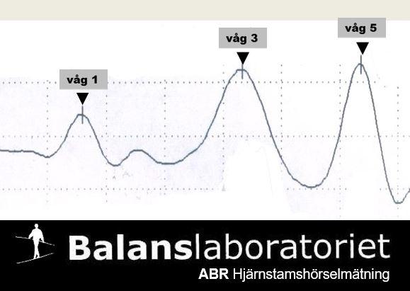 Hjärnstamsaudiometri, hjärnstamshörselmätning
