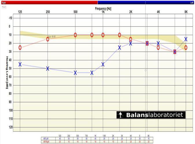 Hörselprov typisk basnedsättning vid svullnad i vänster inneröre t e x Menieres sjukdom