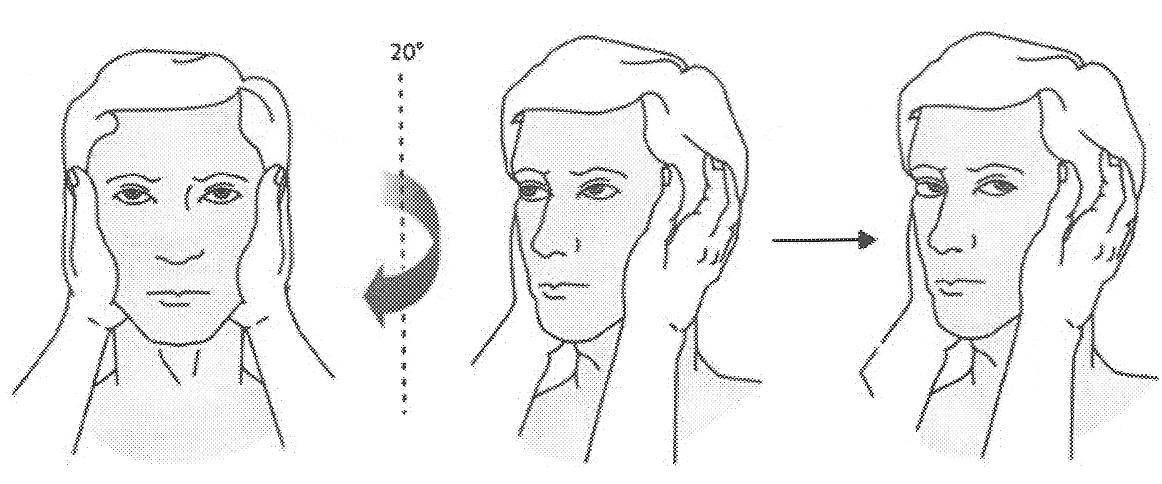 Manuelt impulstets som påvisar ögoneftersläpning vid provokation åt höger