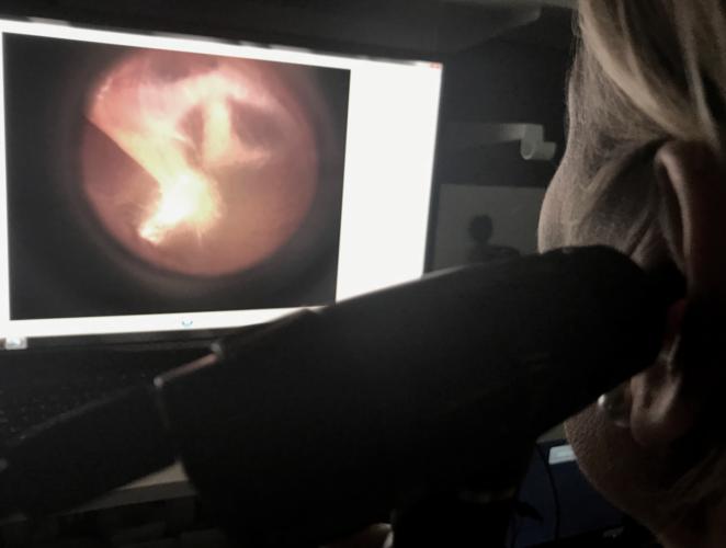 Digital otoskopi Undersökning av trumhinnan Yrselcenter Stockholm