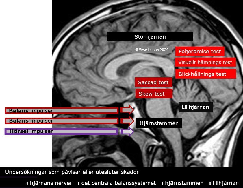 Balanstest Hjärnans nerver och det centrala balanssystemet
