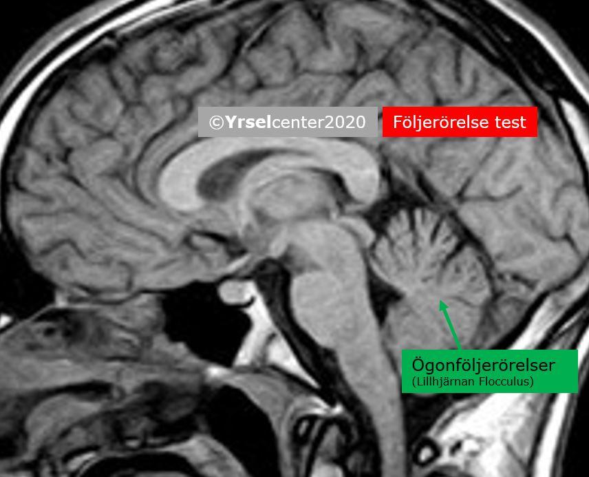 Test av lillhjärnans funktion vid yrsel- och balanssjukdomar