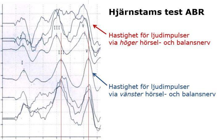 Skadad hörselnerv syns med Hjärnstamshörselmätning ABR
