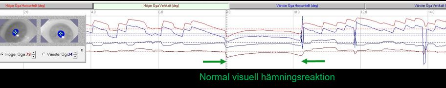 Normalt_visuellt_haemningstest_Balanslaboratoriet