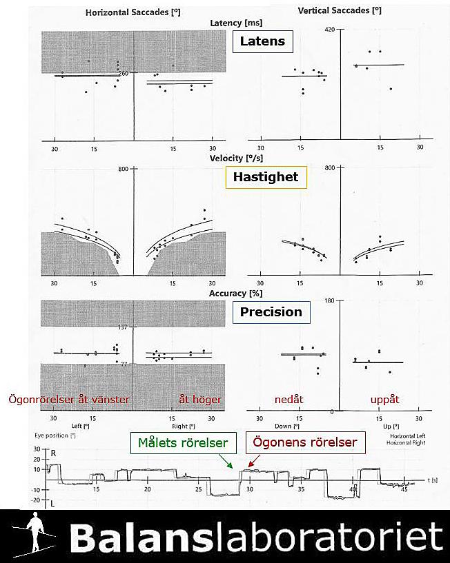 Yrsel_undersökning av det centrala balanssystemet