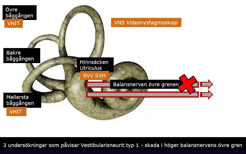 Tre balanstest som påvisar Virus på balansnerven